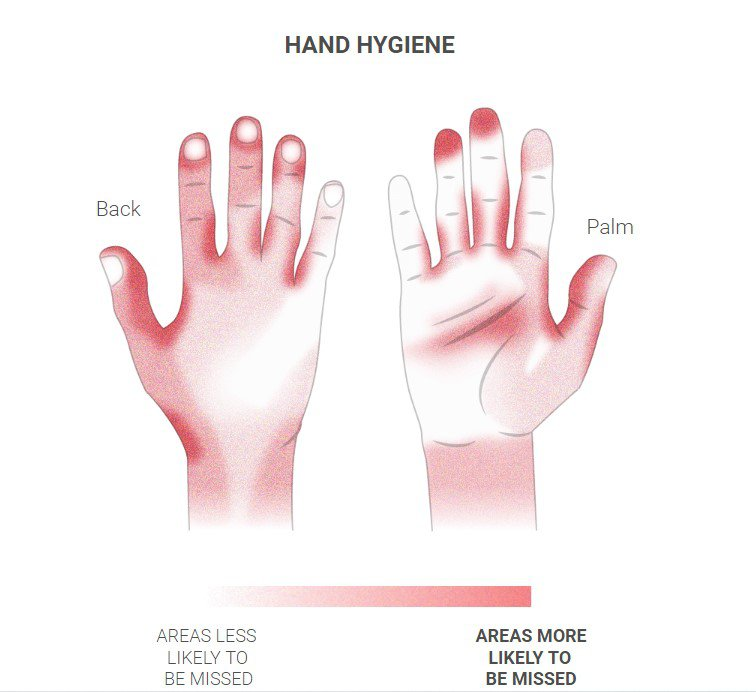 Чим червоніший колір на інфографіці – тим більша ймовірність пропустити цю частину рук при митті